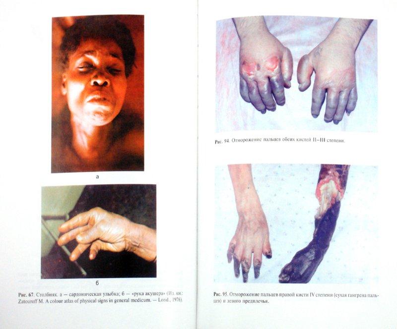 Иллюстрация 1 из 25 для Общая хирургия: учебник (+CD) - Виктор Гостищев | Лабиринт - книги. Источник: Лабиринт