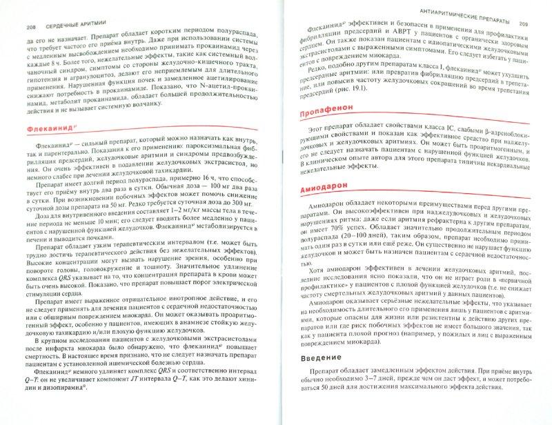 Иллюстрация 1 из 6 для Сердечные аритмии. Практические рекомендации по интерпретации кардиограмм и лечению - Дэвид Беннет | Лабиринт - книги. Источник: Лабиринт
