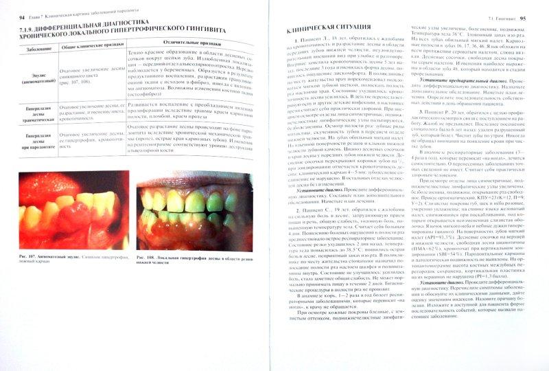 Иллюстрация 1 из 31 для Терапевтическая стоматология. Учебник в 3-х частях. Часть 2. Болезни пародонта - Барер, Лемецкая, Суражев | Лабиринт - книги. Источник: Лабиринт