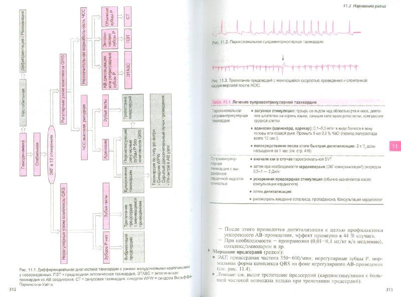 Иллюстрация 1 из 21 для Неонатология. Практические рекомендации - Рооз, Генцель-Боровичени, Прокитте | Лабиринт - книги. Источник: Лабиринт
