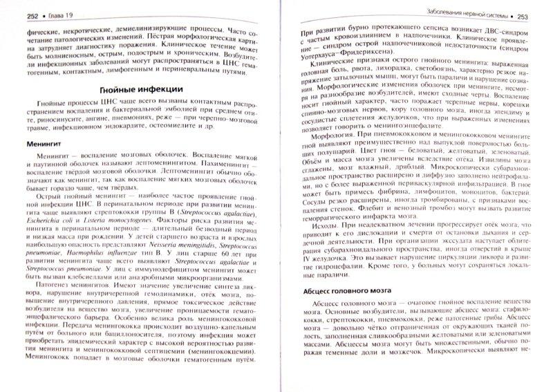 Иллюстрация 1 из 9 для Патология. В 2-х томах. Том 2 (+CD)   Лабиринт - книги. Источник: Лабиринт
