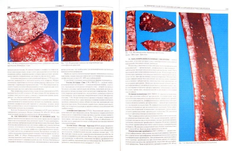 Иллюстрация 1 из 13 для Атлас макроскопической патологии человека - Александр Синельников | Лабиринт - книги. Источник: Лабиринт