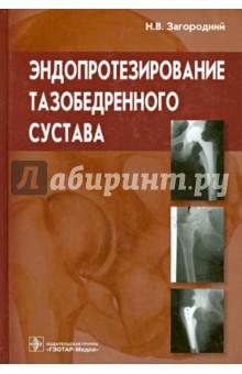 Эндопротезирование тазобедренного сустава. Основы и практика: руководство буркхардт с с артроскопическая хирургия плечевого сустава практическое руководство