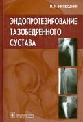 Эндопротезирование тазобедренного сустава. Основы и практика. Руководство