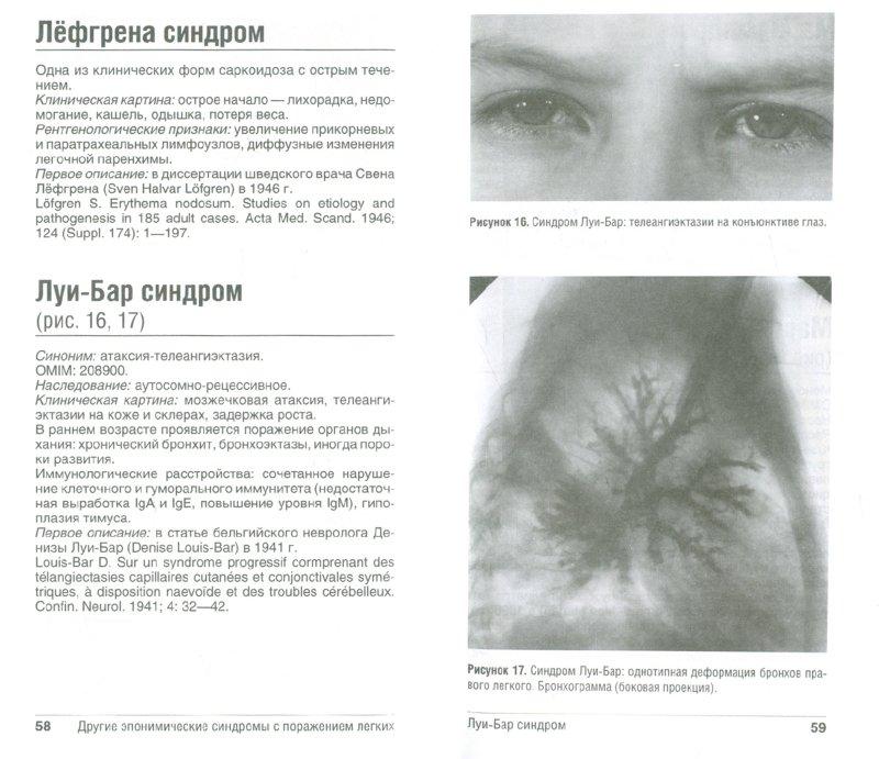 Иллюстрация 1 из 3 для Эпонимические синдромы в пульмонологии. Справочник - Розинова, Лев, Богорад | Лабиринт - книги. Источник: Лабиринт