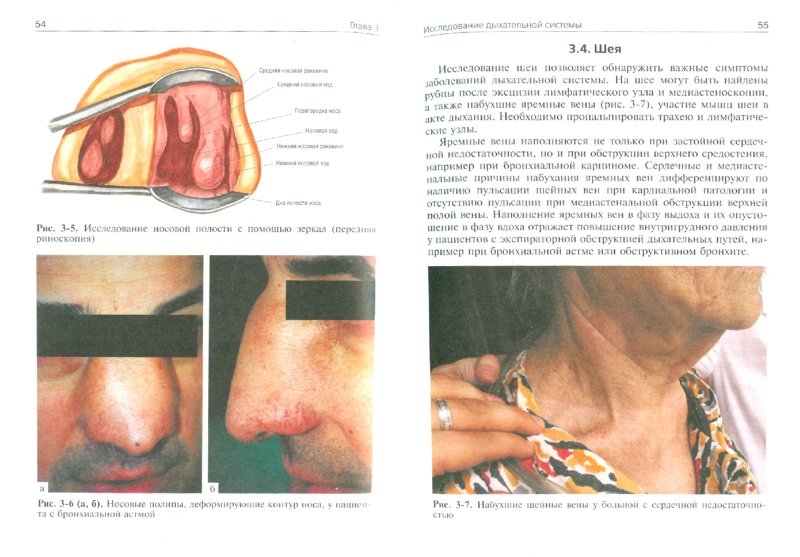 Иллюстрация 1 из 6 для Пропедевтика внутренних болезней. Пульмонология - Ивашкин, Драпкина   Лабиринт - книги. Источник: Лабиринт
