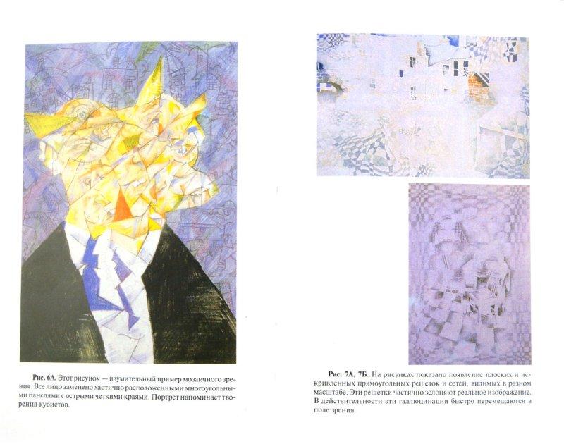 Иллюстрация 1 из 9 для Мигрень - Оливер Сакс | Лабиринт - книги. Источник: Лабиринт
