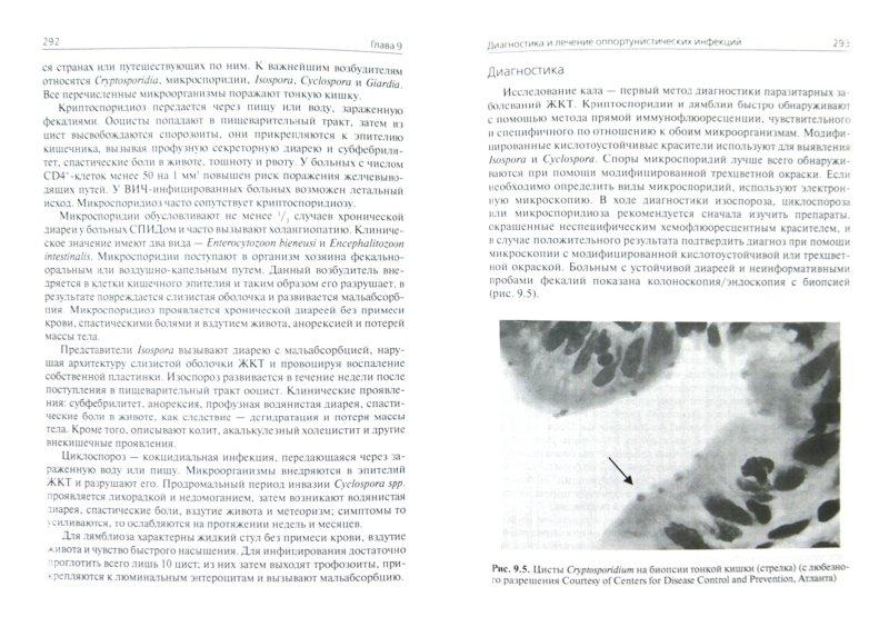 Иллюстрация 1 из 6 для ВИЧ-инфекция - Либман, Макадон | Лабиринт - книги. Источник: Лабиринт