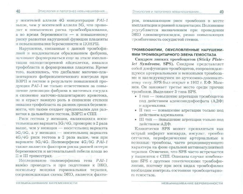 Иллюстрация 1 из 10 для Невынашивание беременности. Руководство для врачей - Подзолкова, Скворцова, Шевелева | Лабиринт - книги. Источник: Лабиринт