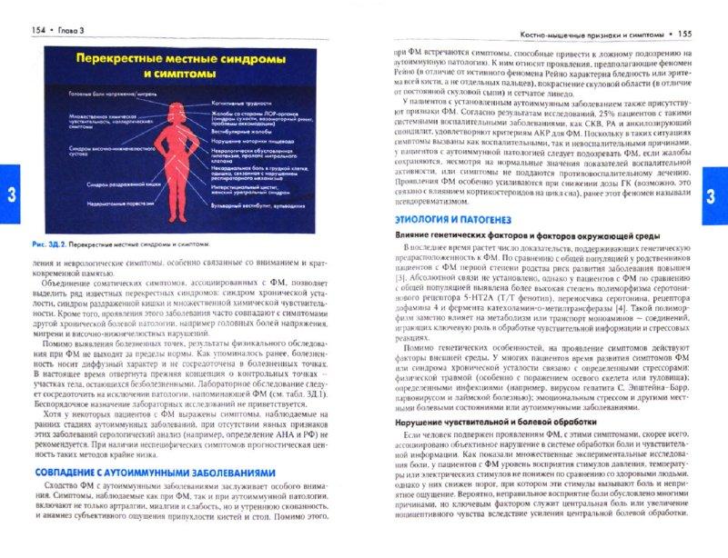 Иллюстрация 1 из 4 для Ревматические заболевания. В 3-х томах. Том 1. Основы ревматологии   Лабиринт - книги. Источник: Лабиринт