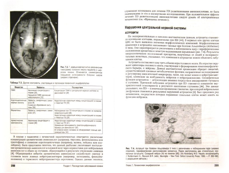 Иллюстрация 1 из 7 для Цирроз печени и его осложнения. Трансплантация печени - Шифф, Соррел, Мэддрей | Лабиринт - книги. Источник: Лабиринт