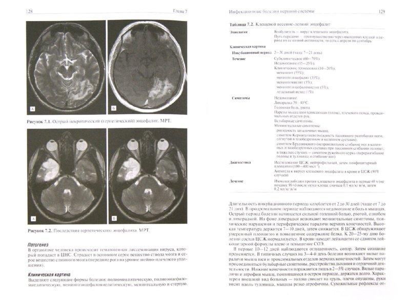 Иллюстрация 1 из 12 для Частная неврология - Суслина, Максимова   Лабиринт - книги. Источник: Лабиринт