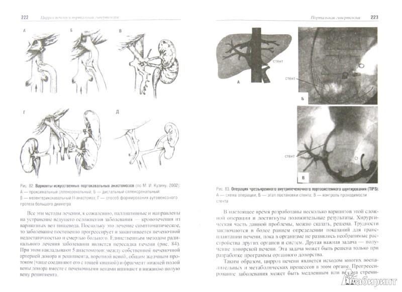 Иллюстрация 1 из 6 для Избранные лекции по факультетской хирургии: учебное пособие - Коханенко, Кабанов, Ульянов | Лабиринт - книги. Источник: Лабиринт