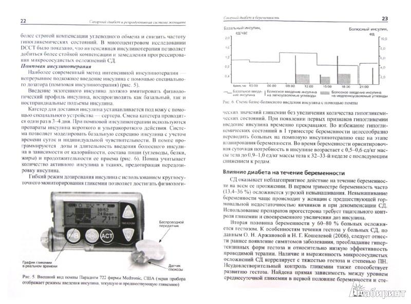 Иллюстрация 1 из 10 для Сахарный диабет и репродуктивная система женщины. Пособие для врачей - Потин, Боровик, Тиселько | Лабиринт - книги. Источник: Лабиринт