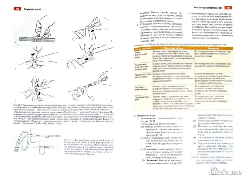 Иллюстрация 1 из 11 для Атлас манипуляций в неонатологии (+ DVD) | Лабиринт - книги. Источник: Лабиринт
