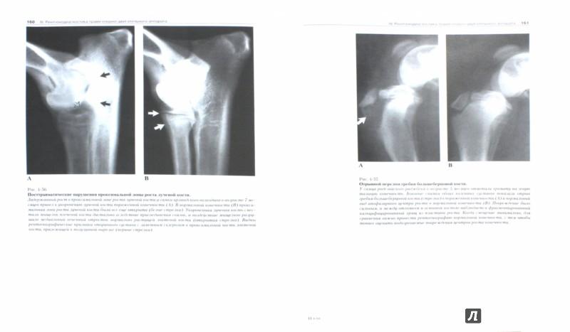 Иллюстрация 1 из 8 для Рентгенологический атлас по травматологии собак и кошек - Морган, Вулвекамп | Лабиринт - книги. Источник: Лабиринт