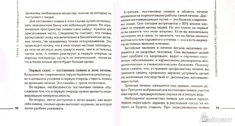 Иллюстрация 1 из 10 для Пиявки: домашняя гирудотерапия - Геннадий Кибардин | Лабиринт - книги. Источник: Лабиринт