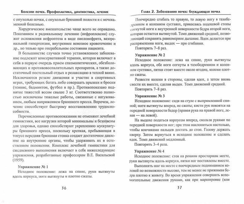 Иллюстрация 1 из 5 для Болезни почек. Профилактика, диагностика, лечение - Дмитрий Брашнов | Лабиринт - книги. Источник: Лабиринт