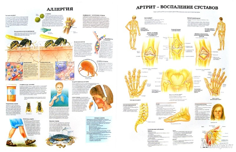 Иллюстрация 1 из 6 для Анатомия человека. Болезни и нарушения   Лабиринт - книги. Источник: Лабиринт