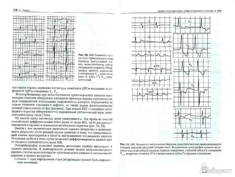 Иллюстрация 1 из 5 для Приобретенные пороки сердца - Владимир Маколкин | Лабиринт - книги. Источник: Лабиринт