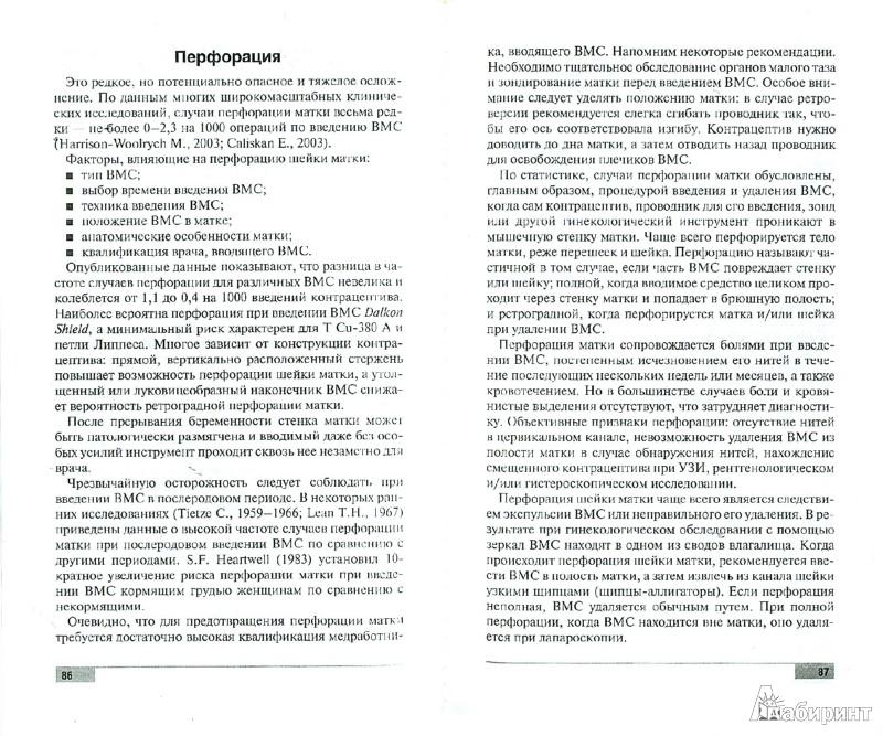 Иллюстрация 1 из 6 для Внутриматочная контрацепция - Прилепская, Межевитинова, Тагиева | Лабиринт - книги. Источник: Лабиринт
