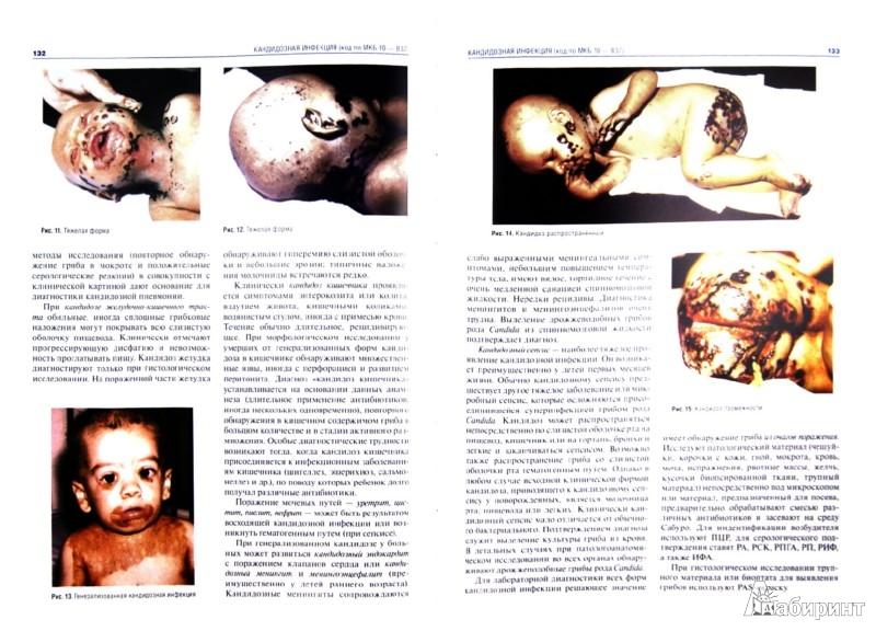 Иллюстрация 1 из 3 для Инфекционные болезни. Атлас: руководство - Учайкин, Шамшева, Харламова, Полеско | Лабиринт - книги. Источник: Лабиринт