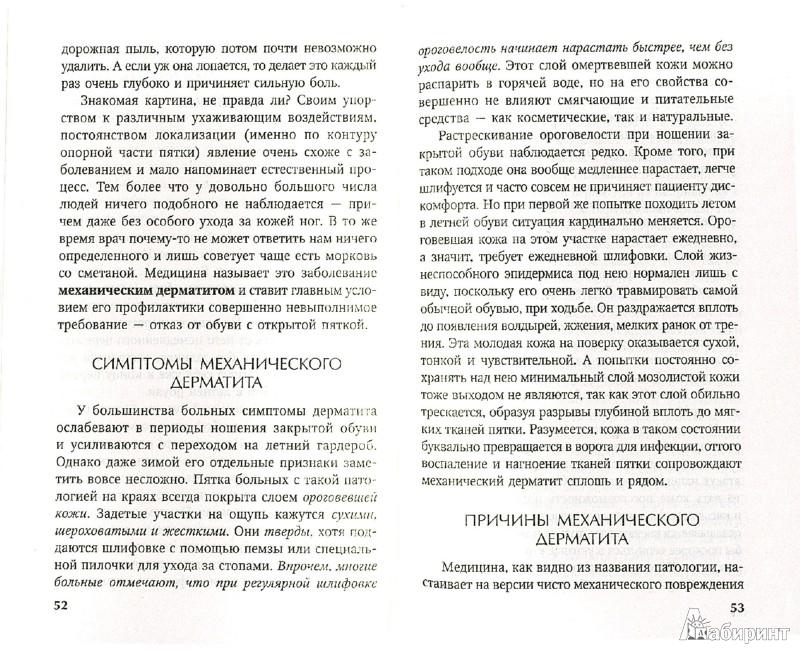 Иллюстрация 1 из 11 для Самое важное о болезнях ног - Е.М. Савельева   Лабиринт - книги. Источник: Лабиринт
