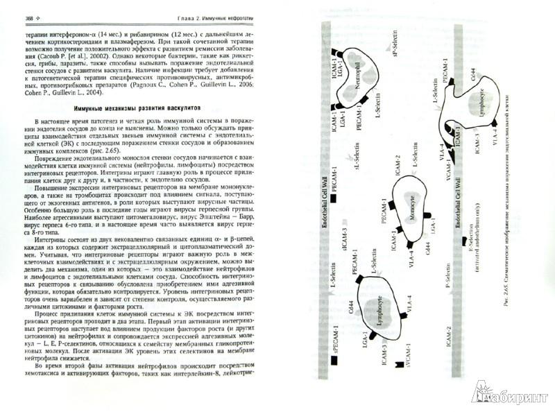 Иллюстрация 1 из 31 для Нефрология. Том 1. Заболевания почек - Рябов, Ракитянская, Арьев | Лабиринт - книги. Источник: Лабиринт