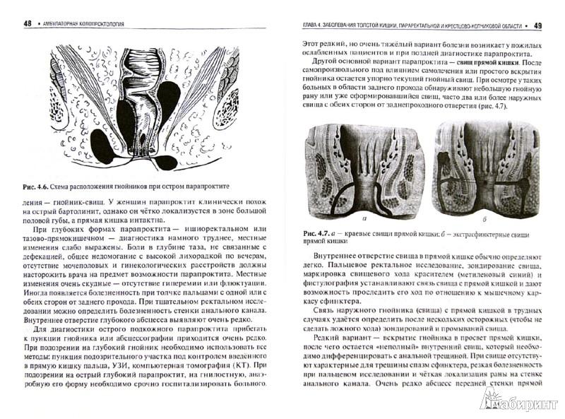 Иллюстрация 1 из 6 для Амбулаторная колопроктология: руководство - Владимир Ривкин   Лабиринт - книги. Источник: Лабиринт