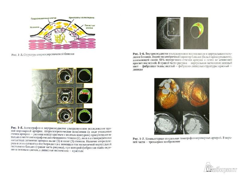 Иллюстрация 1 из 32 для Внутренние болезни. Учебник. В 2-х томах. Том 1 - Валентин Моисеев | Лабиринт - книги. Источник: Лабиринт