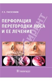 Перфорация перегородки носа и ее лечение