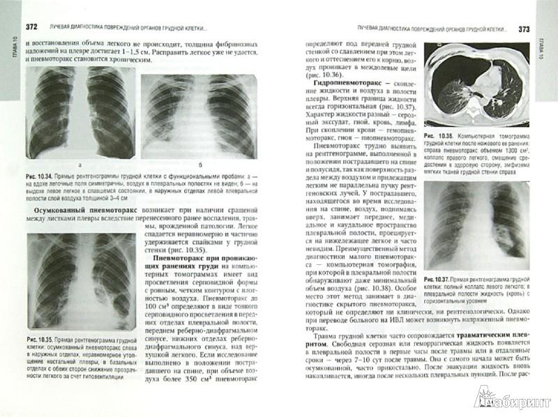 Иллюстрация 1 из 11 для Лучевая диагностика органов грудной клетки. Национальное руководство - Троян, Шехтер, Алексеева | Лабиринт - книги. Источник: Лабиринт