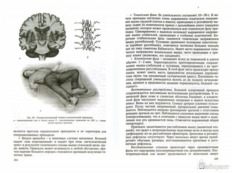 Иллюстрация 1 из 7 для Сестринская помощь в неврологии - Гольдблат, Спринц, Сергеева | Лабиринт - книги. Источник: Лабиринт