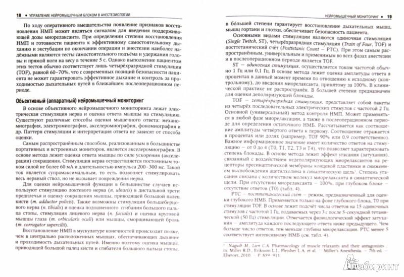 Иллюстрация 1 из 5 для Управление нейромышечным блоком в анестезиологии. Клинические рекомендации - Агеенко, Бабаянц, Вершута | Лабиринт - книги. Источник: Лабиринт
