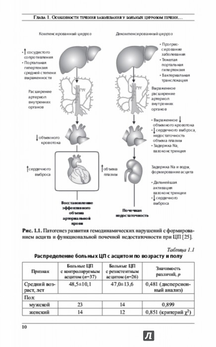Иллюстрация 1 из 3 для Резистентный асцит у больных циррозом печени - Ивашкин, Федосьина | Лабиринт - книги. Источник: Лабиринт