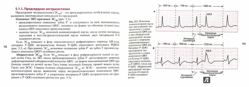 Иллюстрация 1 из 8 для Тахиаритмии и брадиаритмии. Диагностика и лечение - А. Струтынский | Лабиринт - книги. Источник: Лабиринт