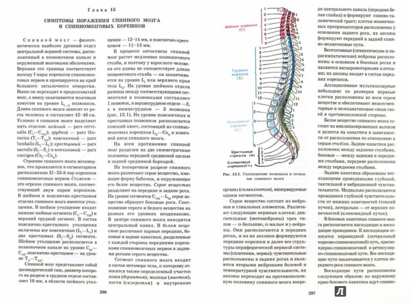 Иллюстрация 1 из 36 для Топическая диагностика заболеваний нервной системы. Руководство для врачей - Скоромец, Скоромец, Скоромец | Лабиринт - книги. Источник: Лабиринт