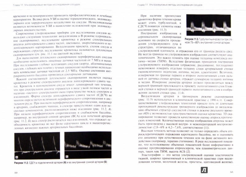 Иллюстрация 1 из 29 для Руководство по кардиологии. Том 2. Методы диагностики сердечно-сосудистых заболеваний   Лабиринт - книги. Источник: Лабиринт