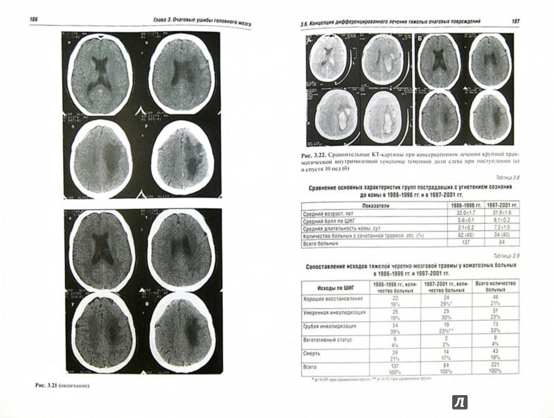 Иллюстрация 1 из 12 для Черепно-мозговая травма. Диагностика и лечение - Леонид Лихтерман | Лабиринт - книги. Источник: Лабиринт