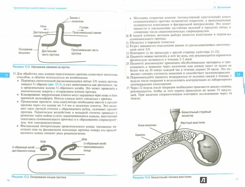 Иллюстрация 1 из 5 для Урологические манипуляции и малые операции - Хашим, Абрамс, Дмоховски | Лабиринт - книги. Источник: Лабиринт