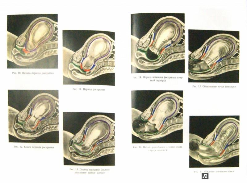 Иллюстрация 1 из 5 для Акушерство - Айламазян, Зайнулина, Новиков | Лабиринт - книги. Источник: Лабиринт