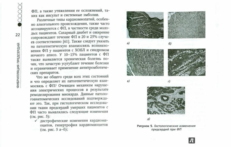 Иллюстрация 1 из 5 для Фибрилляция предсердий - Аркадий Верткин | Лабиринт - книги. Источник: Лабиринт