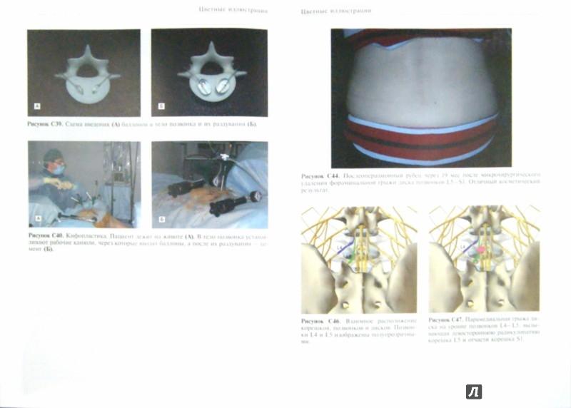 Иллюстрация 1 из 5 для Практика спинальной хирургии в условиях частной клиники - Борщенко, Лялина | Лабиринт - книги. Источник: Лабиринт