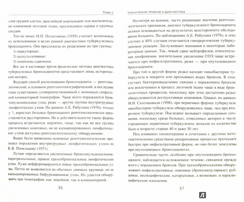 Иллюстрация 1 из 3 для Первичный туберкулез органов дыхания у взрослых - Владимир Гольдштейн | Лабиринт - книги. Источник: Лабиринт