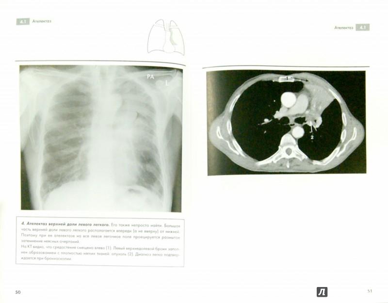 Иллюстрация 1 из 11 для Рентгенография грудной клетки - Корн, Пойнтон | Лабиринт - книги. Источник: Лабиринт