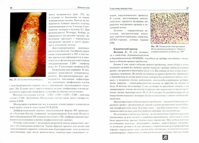 Иллюстрация 1 из 5 для Лимфома кожи - Молочков, Ковригина, Кильдюшевский | Лабиринт - книги. Источник: Лабиринт