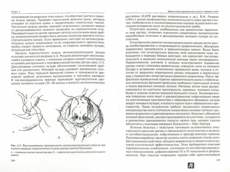 Иллюстрация 1 из 5 для Травма органов мочеполовой системы (клиника, диагностика, тактика лечения): Руководство для врачей - Альберт Довлатян | Лабиринт - книги. Источник: Лабиринт