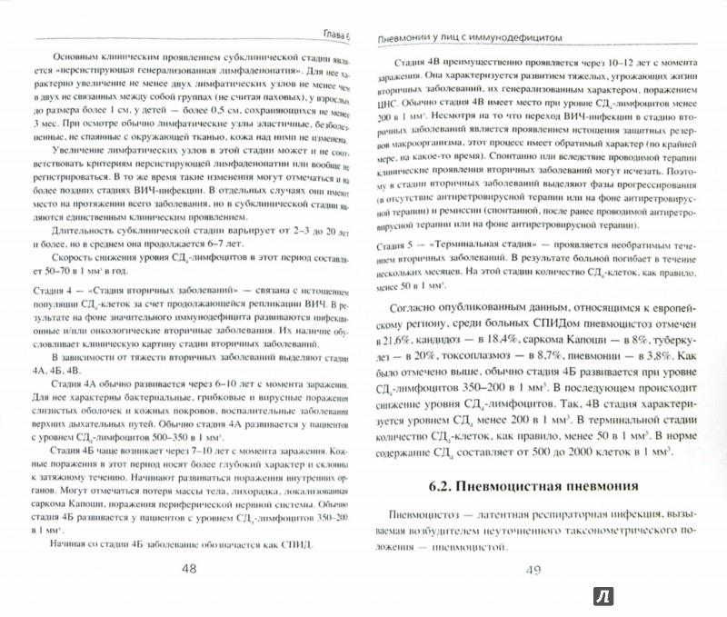 Иллюстрация 1 из 6 для Пневмонии - Владимир Гольдштейн | Лабиринт - книги. Источник: Лабиринт