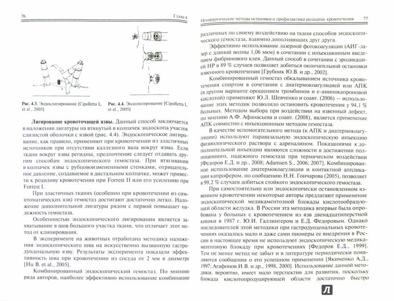 Иллюстрация 1 из 4 для Язвенные гастродуоденальные кровотечения - Лебедев, Климов | Лабиринт - книги. Источник: Лабиринт