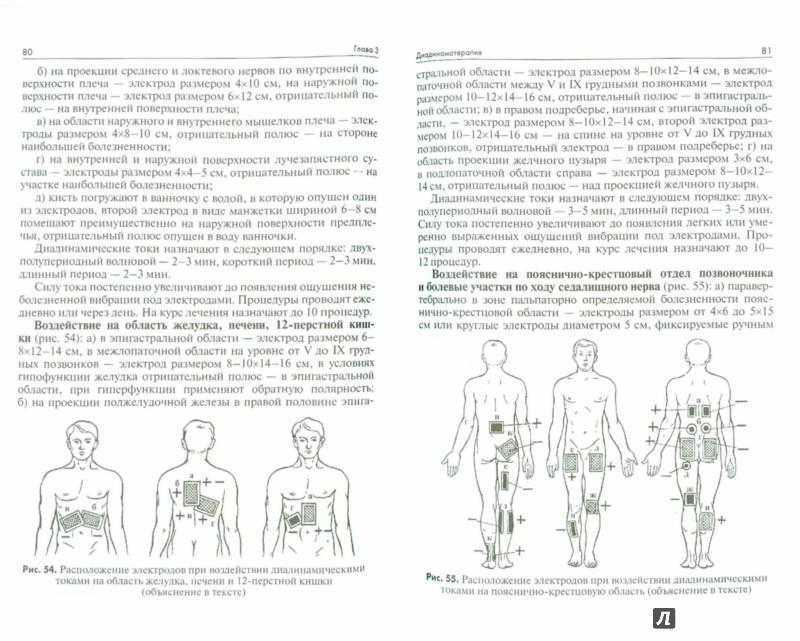 Иллюстрация 1 из 6 для Техника и методики физиотерапевтических процедур. Справочник - Ерохина, Боголюбов, Довганюк | Лабиринт - книги. Источник: Лабиринт